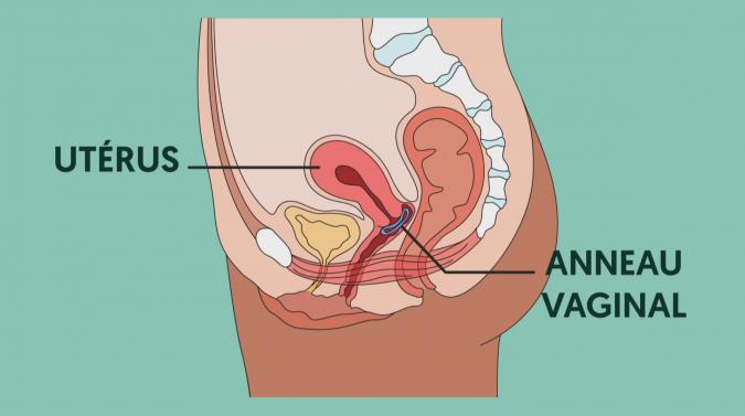 Anneau vaginal