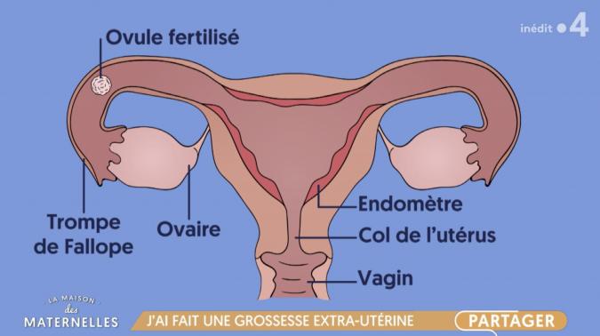 grossesse classique