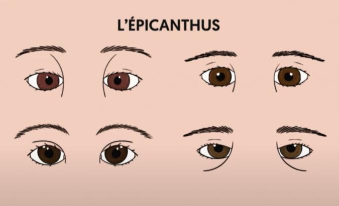 épicanthus