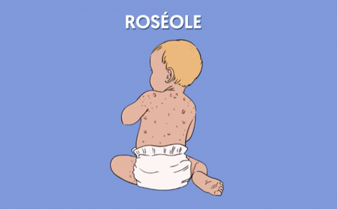 roseole