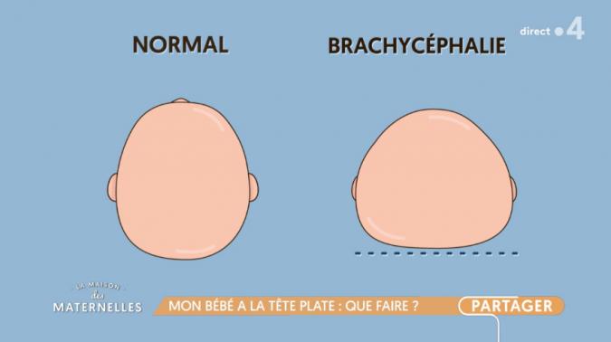 brachy